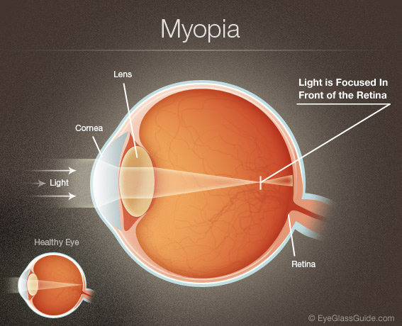 Light entering the eye is focused by the Lens and Cornea to a single point in front of the Retina
